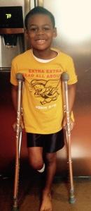 marcus-crutches